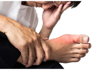 Natural Remedies To Reduce Uric Acid & Prevent Gout