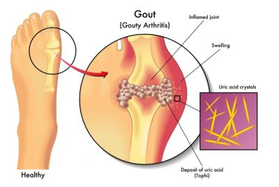 Gout causes, symptoms, Risk Factors