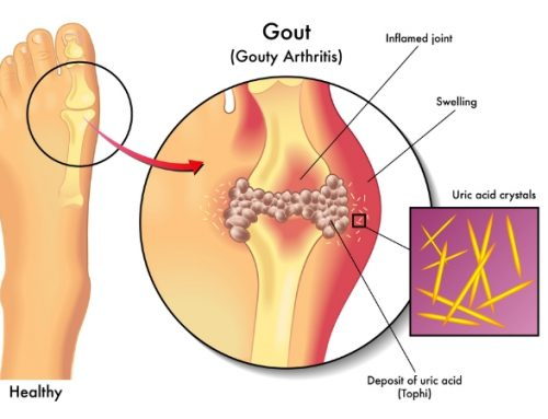 Read On To Know What Is Gout, Its Causes, Symptoms And Risk Factors